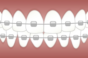 More information about Invisalign 23