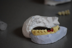 Take a look Invisalign 37